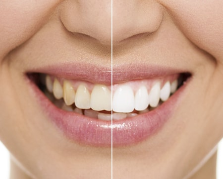 A comparison view of a person teeth before and after teeth whitening in our Wichita dentist office.