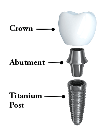 The parts of the dental implant: post, abutment, and crown or prosthesis