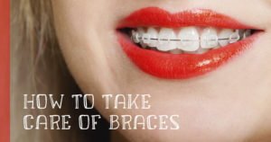 How to take care of braces
