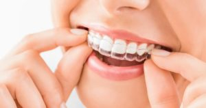 Woman trying on Invisalign clear aligners at Harbour Pointe Family Dentistry
