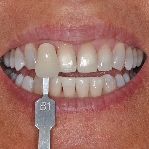 Close up of a person's smile after receiving teeth whitening in Wichita, KS.