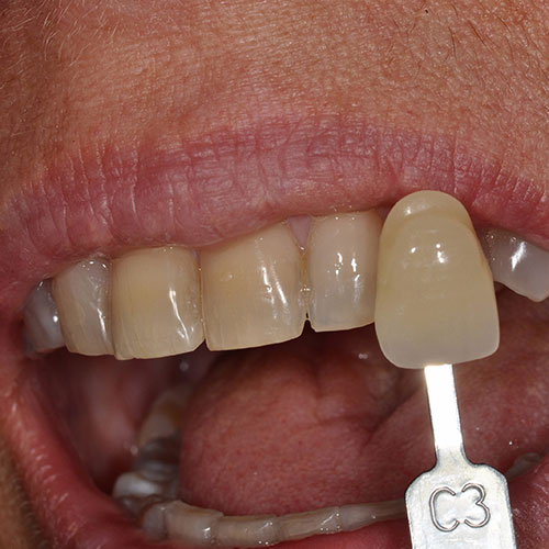 Close up of a person's smile before receiving teeth whitening in Wichita, KS.